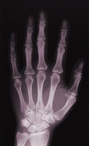 alleged Cretaceous hand bones