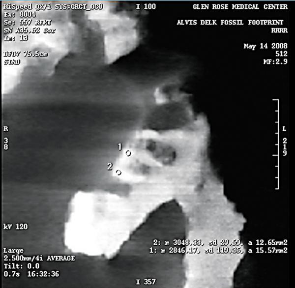 Delk scan 1